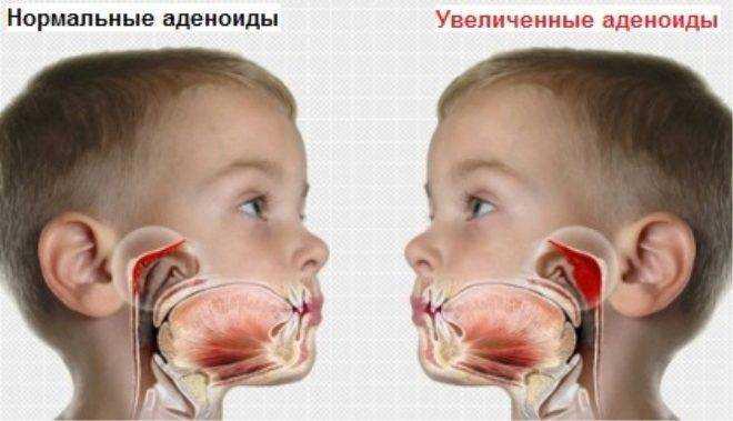 питание при аденоидах у детей комаровский