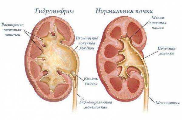 питание при гидронефрозе у детей