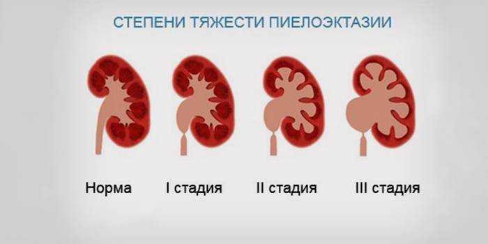 питание при инфекции мочевыводящих путей у детей