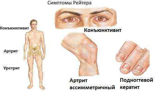 питание при реактивном артрите у детей