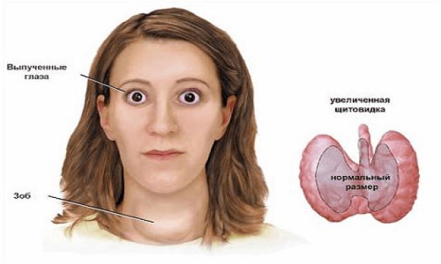 питание при заболевании щитовидной железы у детей
