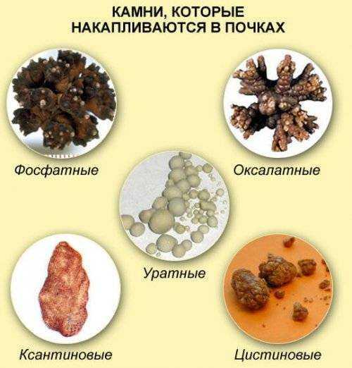 соли в почках у детей симптомы лечение питание