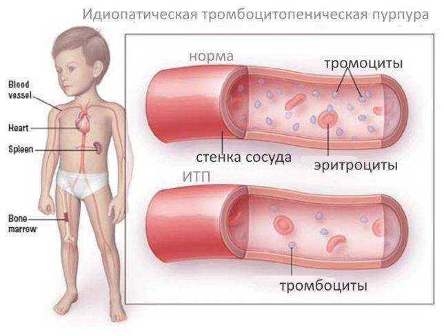 тромбопеническая пурпура у детей питание