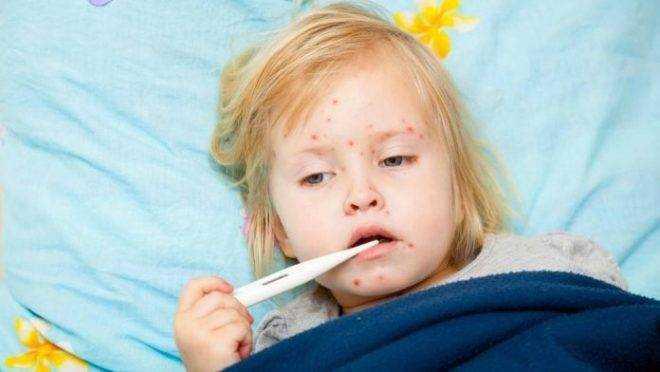 ветрянка у детей симптомы и лечение питание