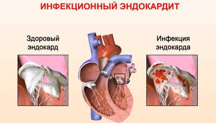 врожденный порок сердца у детей питание