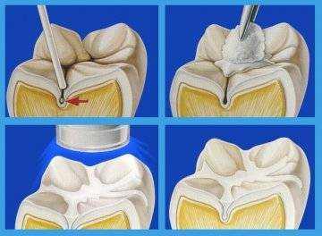 значение питания в профилактике кариеса зубов у детей