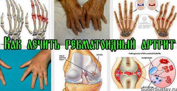 ревматоидный артрит у детей лечение народными средствами и питанием