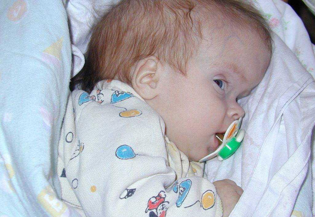 питание при гидроцефалии у детей